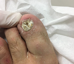 After geriatric toenail treatment